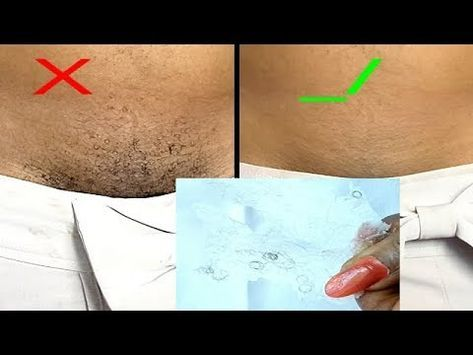 1e9f712b5b843e5a9273127b1527dc98 - How To Get Rid Of Underarm Hair Permanently Naturally
