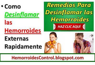 Remedios naturales para desinflamar hemorroides externas