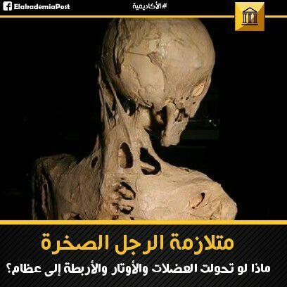 متلازمة الرجل الصخرة ماذا لو تحولت العضلات والأوتار والأربطة إلى عظام قد لا تفكر في عظامك في كثير من الأحيان إلا عندما تشعر ب Lion Sculpture Statue Sculpture
