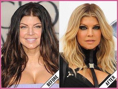 Beforeandafter Beforeafter Celebrity Fergie Celebrities Plasticsurgery Busy Fergie Plastic Surgery Celebrity Plastic Surgery Plastic Surgery