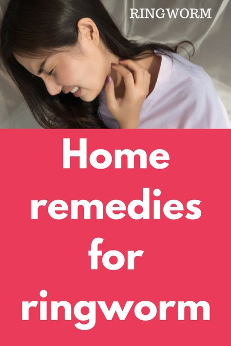 Home remedies for ringworm | Healthcare | Home remedies for
