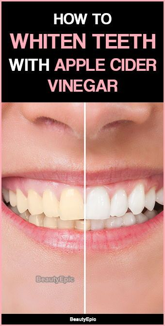 Does Apple Cider Vinegar Really Whiten Your Teeth? apple cider vinegar for teeth whitening Skin Whitening Foods, Natural Teeth Whitening, Natural Toothpaste, Apple Cider Vinegar Remedies, Apple Cider Vinegar Benefits, White Vinegar Benefits, Apple Cider Vinegar For Hair, Mac Cosmetics, Natural Cold Remedies
