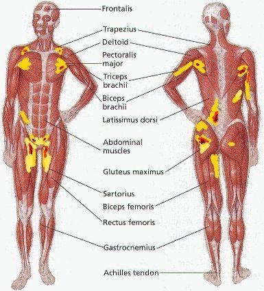 18 Best Back Pain Down Leg Images On Pinterest Back Pain Anatomy