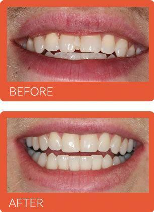 Face Shape Before And After Wisdom Teeth Removal : shape, before, after, wisdom, teeth, removal, Beauty