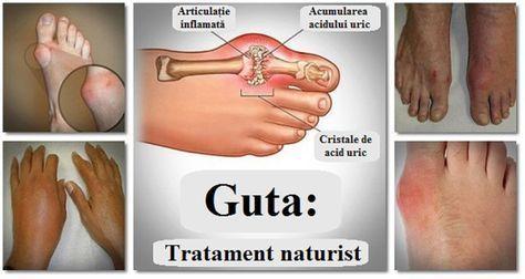 guta remedii naturale