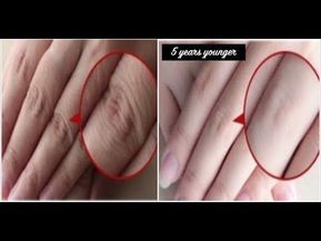 56 How To Make Your Hands Look 5 Years Younger Overnight Wrinkle Free Smooth Fair Hands Wrinkle Free Skin Beauty Tips For Glowing Skin Skin Care Wrinkles