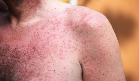 How To Get Rid Of Itchy Rash On Neck