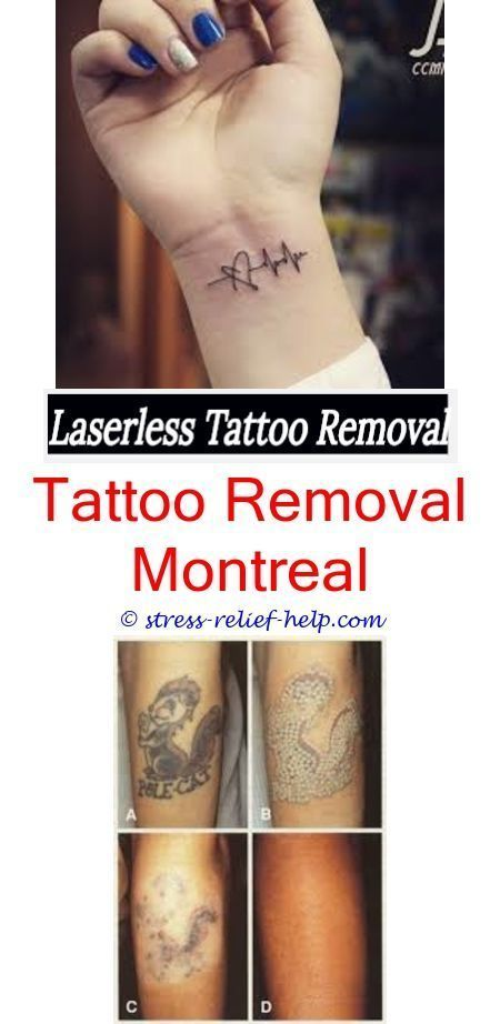 tattoo removal prices pico laser tattoo removal cost - what options ...