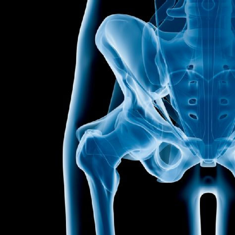 What is Hip Dysplasia? Hip dysplasia, or a dislocation of the hip, is a condition which causes instability and difficulty walking. Continue reading to learn more about hip dysplasia and the orthopedic treatment options available for this condition.
