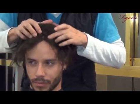 implante capilar ,implate de cabello , protesis capilares alopecia cura ...