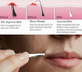 How To Get Rid Of Neck Bumps After Shaving
