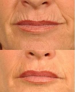 Here's how to get rid of lip wrinkles and lip lines using