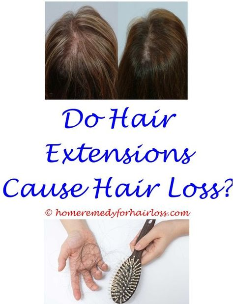 Coconut Oil Male Hair Loss Hats Chemo Hair Loss Does Nisim Hair
