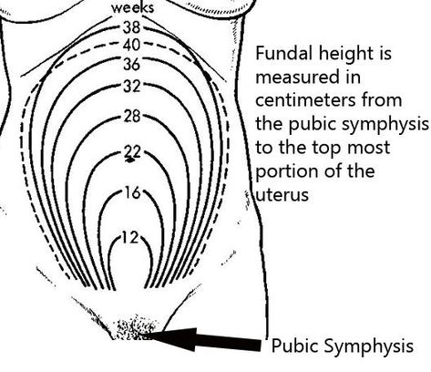 Fundal Height Measurement Chart