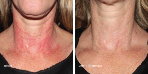 What Is Laser Genesis The Laser Image Company Laser Skin Rejuvenation Skin Rejuvenation Laser
