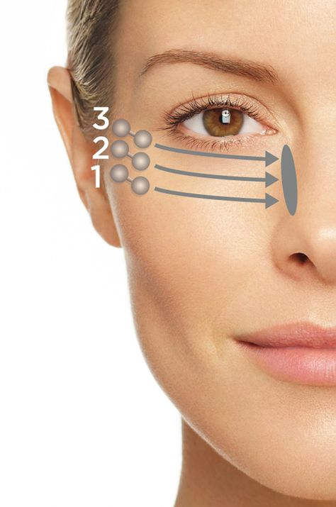 Improve the appearance of the eye & lip areas; includes brow furrows, crow's feet and smile lines.