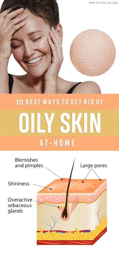 233efa936f7d885357dd0b1c5c7d8e0c - How To Get Rid Of Oily Face Permanently Naturally