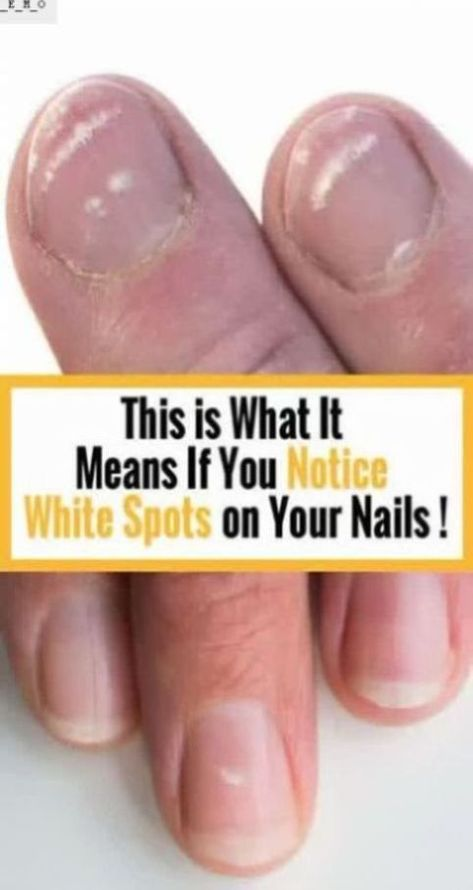Put a Piece of Garlic in Your Mouth For Half an Hour And See What Happens !