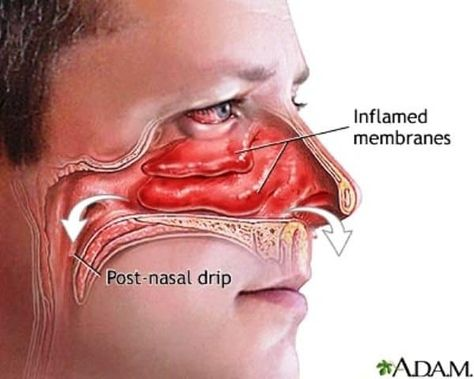 23563c3b6a4db07db80210ed08e1fdc4 - How To Get Over A Sinus Infection In 24 Hours