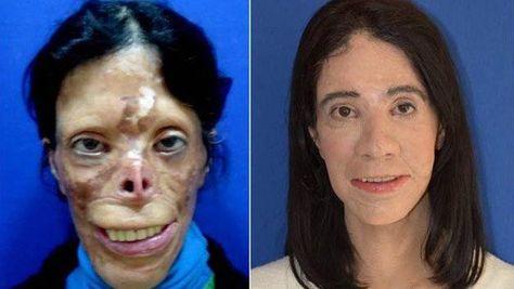 The story of Asiye Engiz - burns and facial reconstruction