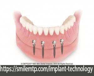 Mini Dental Implants Mini Dental Implants Dental Implants Free Dental Implants