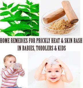 2418e9e2be2e17068fc9164c6c1c7a20 - How To Get Rid Of Prickly Heat Rash On Baby