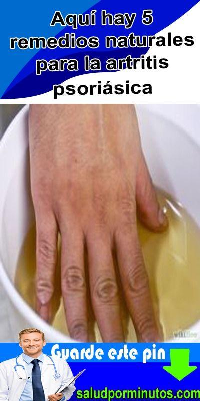 artritis psoriásica remedios caseros
