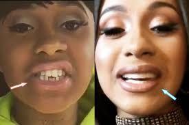 Cardi B Teeth Before After Google Search Cardi B Cardi Cardi
