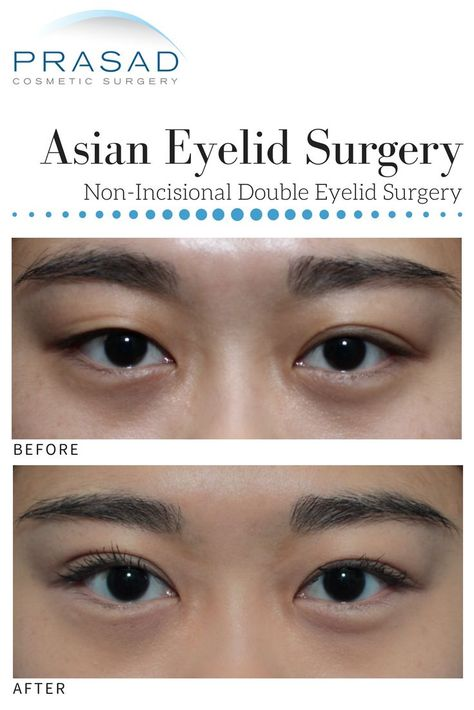 List of eyelids surgery asian images and eyelids surgery asian pictures