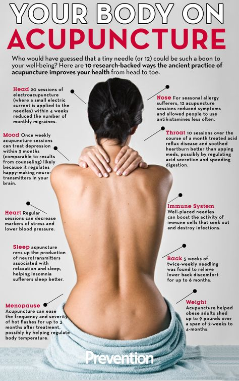 With #Chiari #Malformation we definitely need to improve our health in all ways, in order to minimize our experience of pain and other discomforts. Acupuncture treats your whole body, watering the roots in order to nourish the rest of the tree...