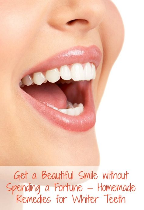 DIY Teeth Whitening – 4 Proven Homemade Remedies for Whiter Teeth