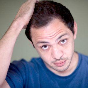 17 best hair transplants images on pinterest hair restoration fue hair transplants the facts pmusecretfo Gallery