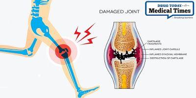 éles lábujjízület fájdalom