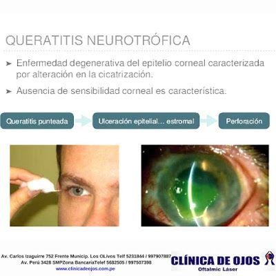 queratitis neurotrófica tipo diabetes