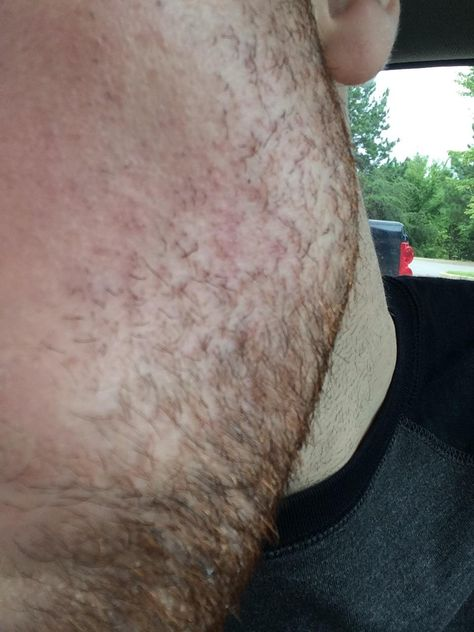 Facial hair irritated follicles