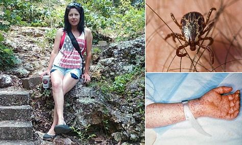 Oklahoma woman's limbs amputated after contracting Rocky Mountain spotted fever | Daily Mail Online