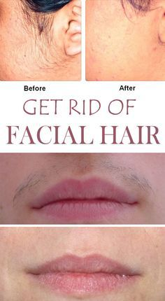 Facial moisturizers to prevent facial hair