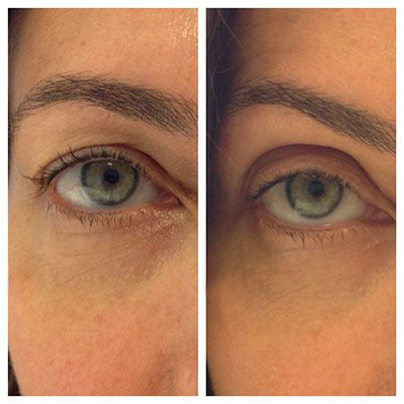 Want an Eye Lift Without Surgery? Here's How: Daily Beauty Reporter :  Even if you find the promise of youthful, taut, post-eye-lift skin tempting, there's a fair chance that you're put off by the cost, risk, and needles required to look like it's still 1999. Enter Contours Rx Lids by Design,...
