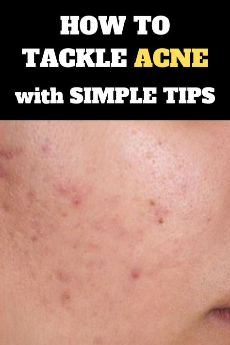 Stress is a major factor that can lead to acne break outs, so do what you can to keep calm, cool, and collected - Acne Remedies #acneremedies