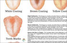 Chinese Tongue Diagnosis Poster 18 X 24   Etsy