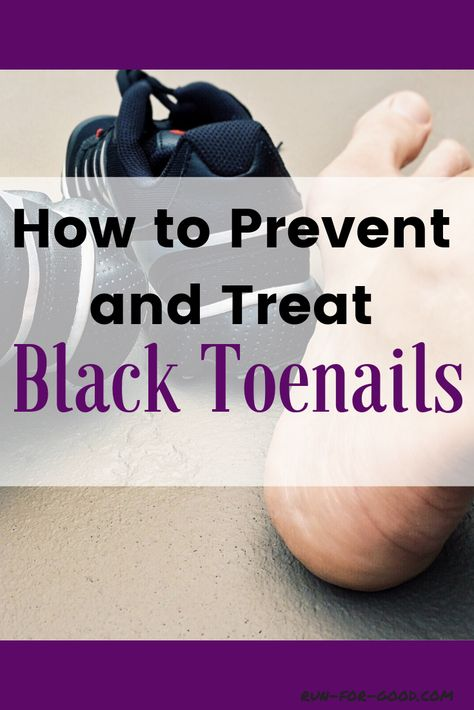How to Prevent and Treat Black Toenails | Running Injuries | Toe ...