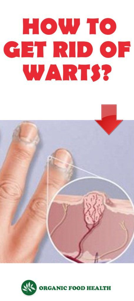 27dd6f96d032e337c716a40985b2eba9 - How To Get Rid Of Tiny Warts On Hands