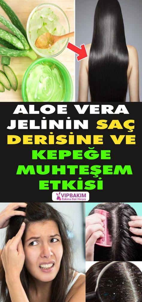 Aloe Vera Jelinin Saca Faydalari Beslenme Sac