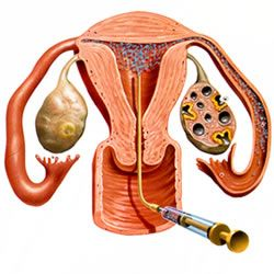 Understanding the IUI Procedure...important for you and your spouse to understand