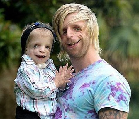 Man With Treacher Collins Syndrome Flies To Australia To Meet Toddler With Same Genetic Condition Treacher Collins syndrome affects facial bone and tissue development. It is a rare condition and effects just one in people.