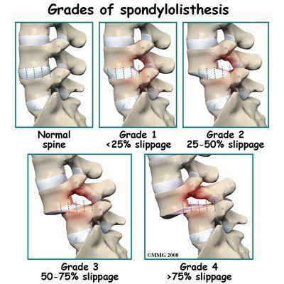 25+ best ideas about Spondylolisthesis on Pinterest   Nerves in ...