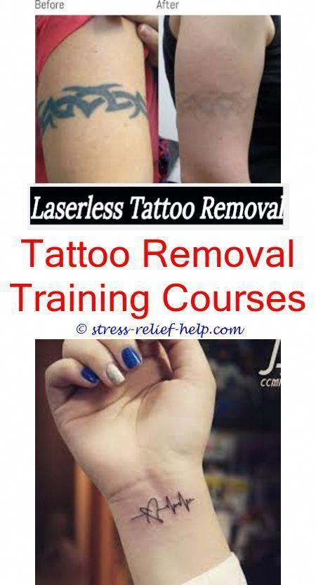 Affordable Tattoo Removal Tattoo Removal Cream Buy Online India