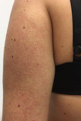 2955ee3a99583b0a1b9465098221a7c6 - How To Get Rid Of Little Red Bumps On Legs