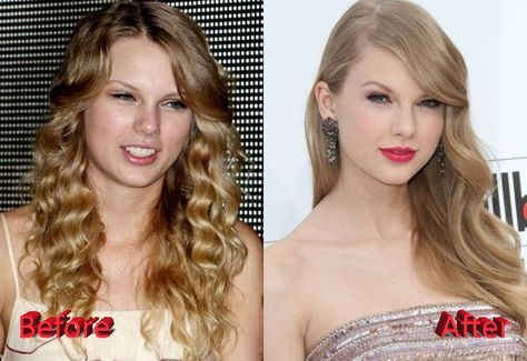 Taylor Swift Plastic Surgery Before and After | Celebrity surgery, Plastic  surgery, Celebrity plastic surgery