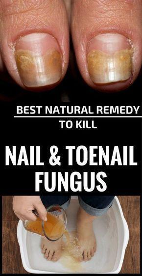 Das Beste Naturliche Heilmittel Gegen Nagel Und Zehennagelpilz
